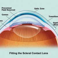121012-scleral-contact-lens-corneal-disease-opu0102-2col.jpg