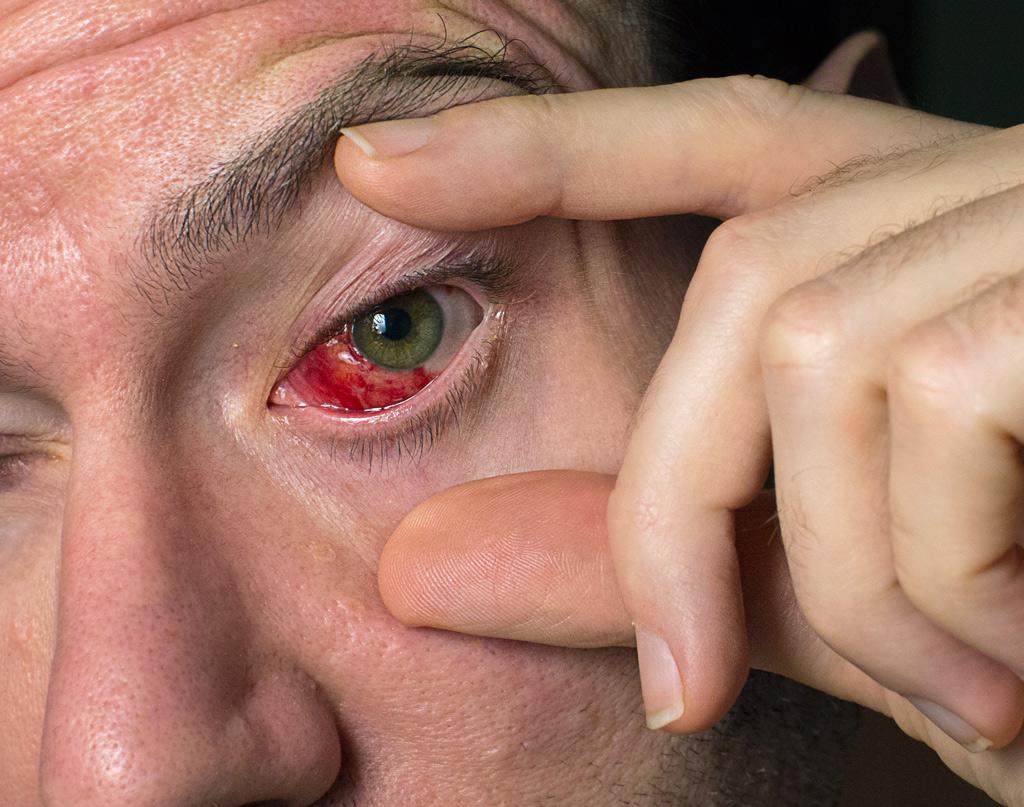 Left eye, 3 days post-op strabismus esotropia surgery