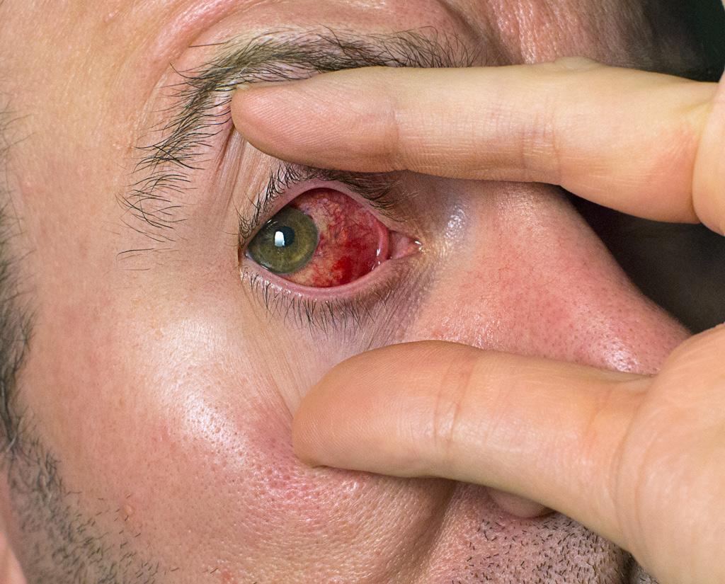 Right eye, 3 days post-op strabismus esotropia