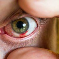 Left Eye   Blurbomat.com